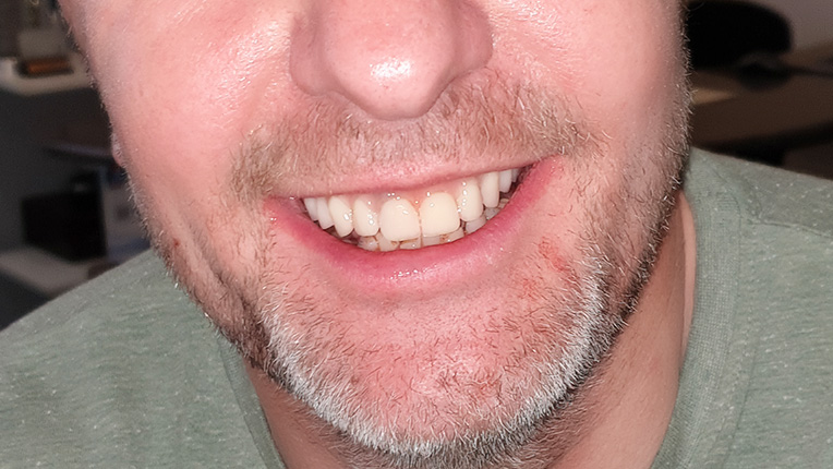 Clinical Case after All-on-4 technique