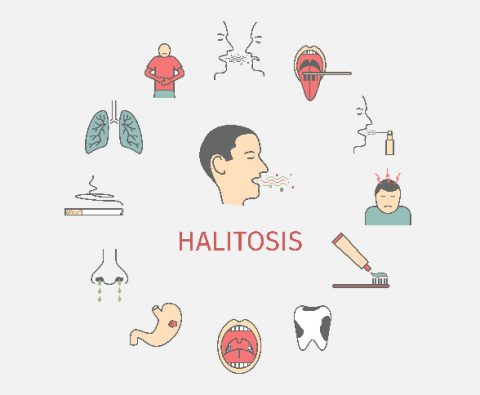 Halitosis, Better Known as Bad Breath